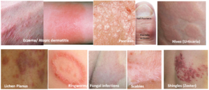 Skin conditions causing Itching