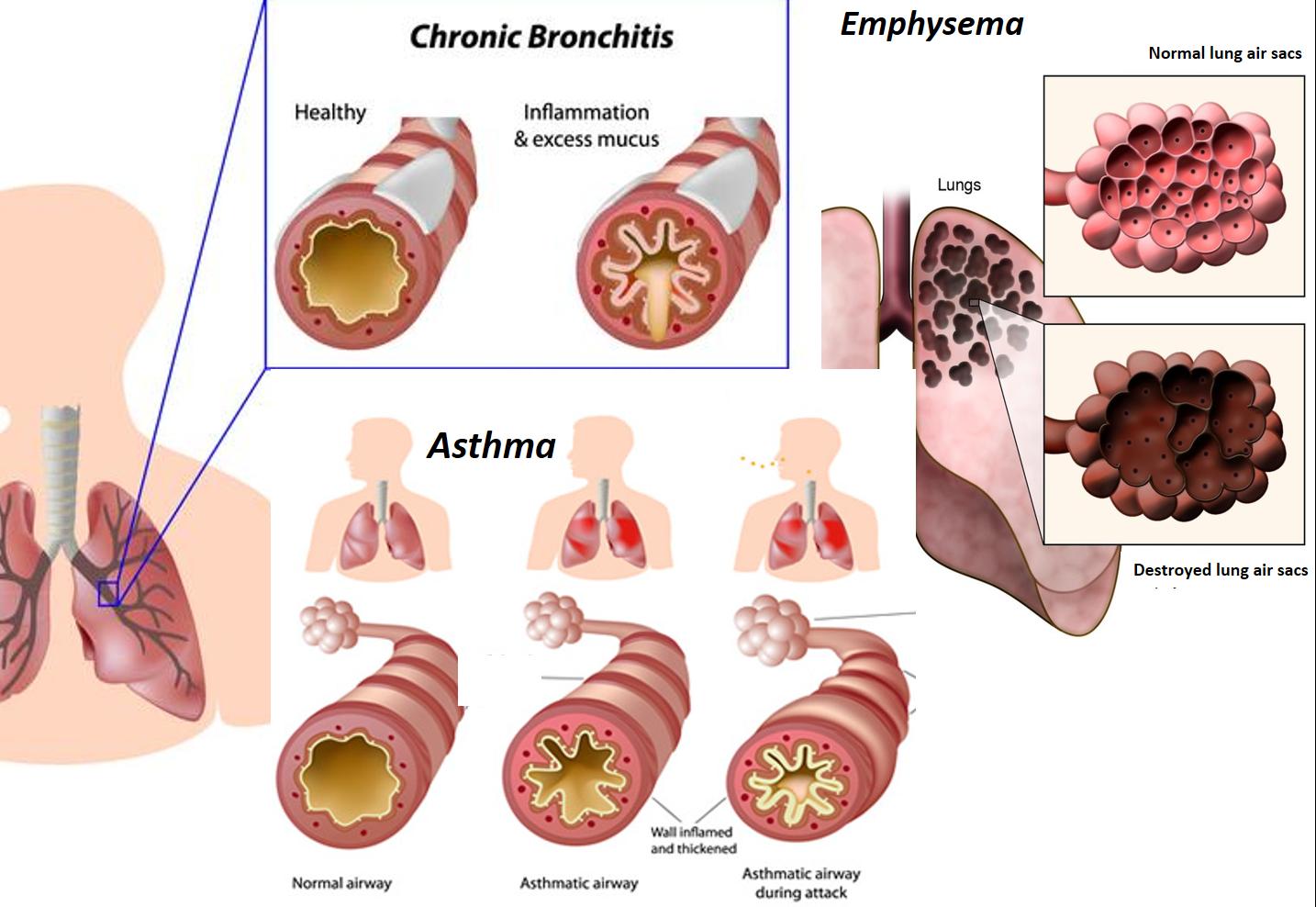 Asthma and Bronchitis pathology