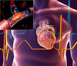Post-COVID Cardiovascular effects